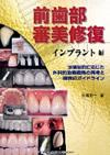 【前歯部審美修復 インプラント編】を見る