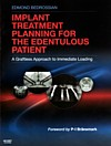 【Implant Treatment Planning for the Edentulous Patient】を見る