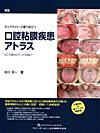 【新版チェアサイド介護で役立つ口腔粘膜疾患アトラス】を見る